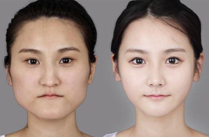 【悲報】韓国の整形技術が限界突破した結果・・・