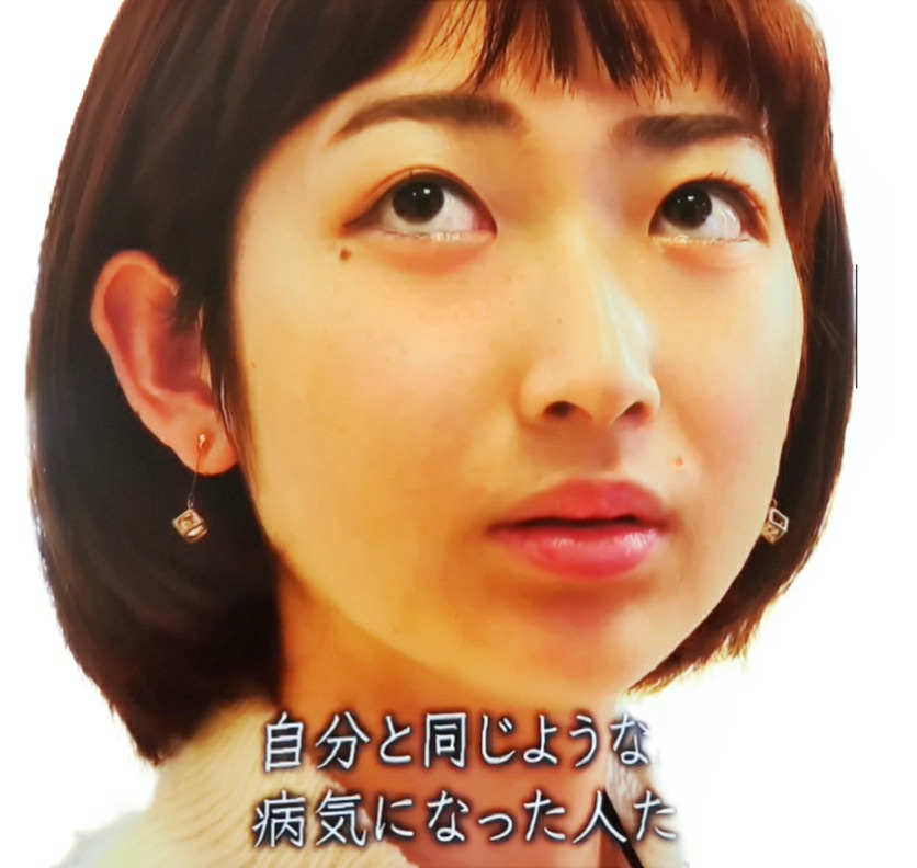 【朗報】池江璃花子さん、全国のハゲに勇気を与える「髪がない事は恥ずかしい事じゃない」