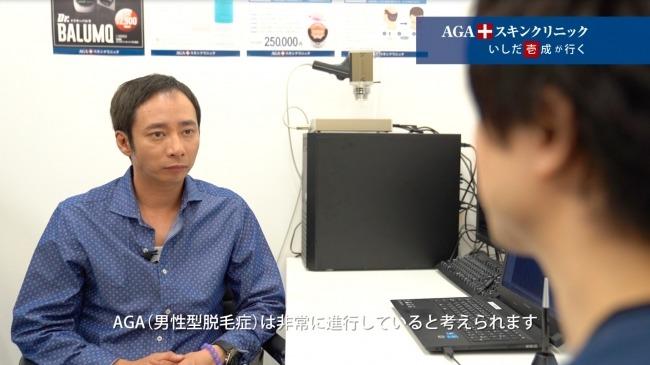 【悲報】いしだ壱成さん、ハゲ治療は効果が無い事を実証してしまう