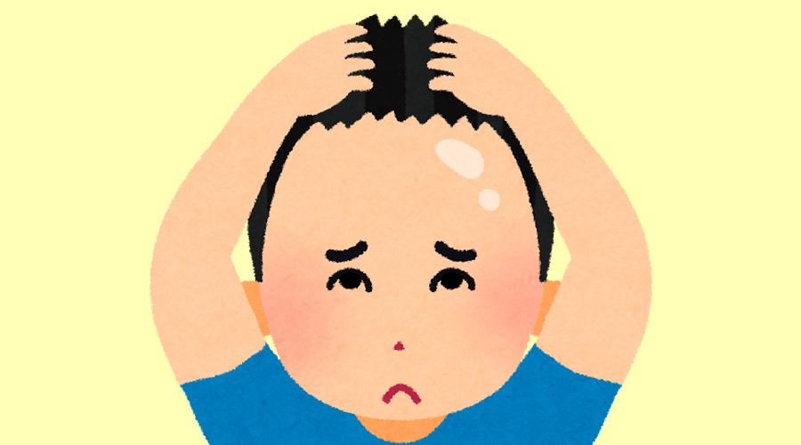 【急募】デコハゲのワイに似合う髪型を教えて!
