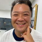 【悲報】ブラマヨ小杉さん、もうすぐハゲそう