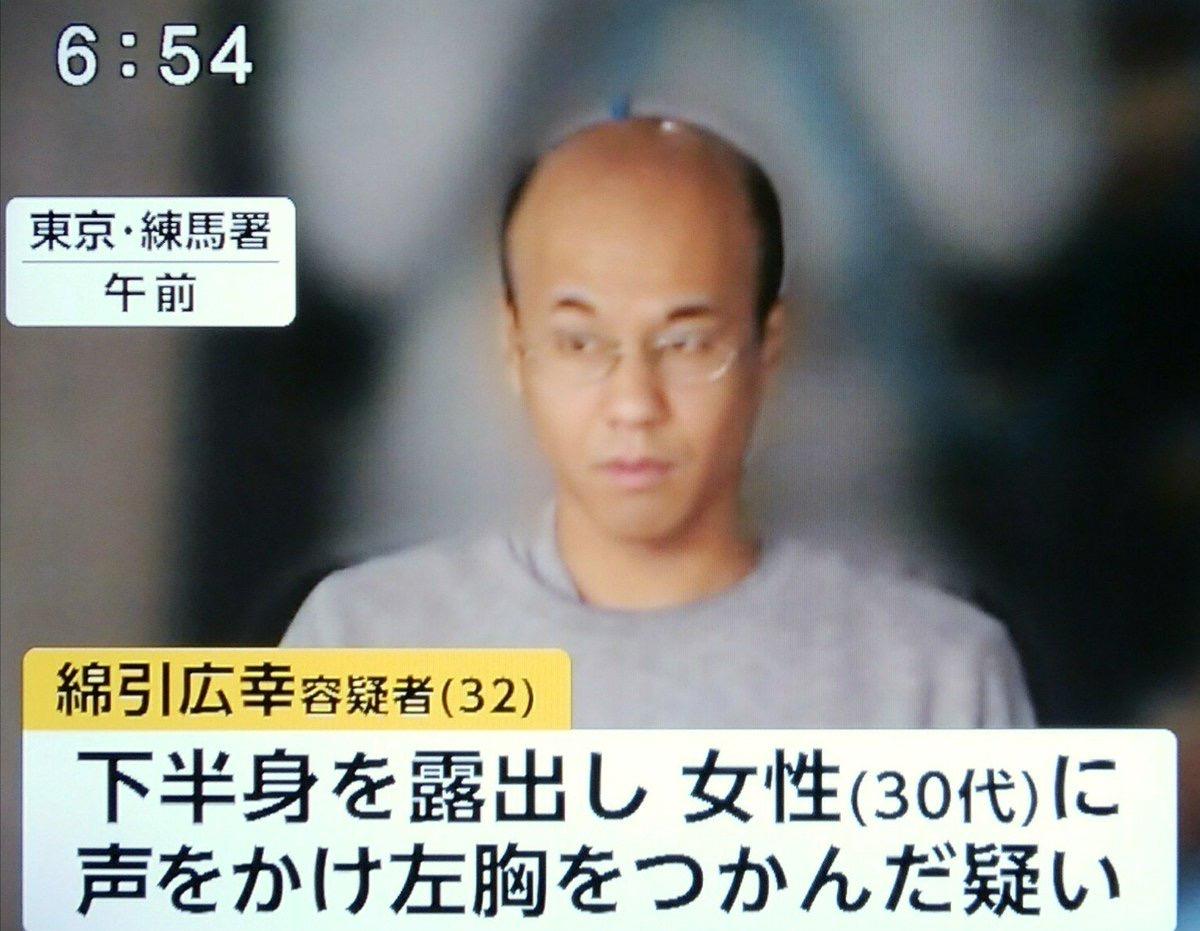 【悲報】日本の若者、ハゲかけが多すぎる
