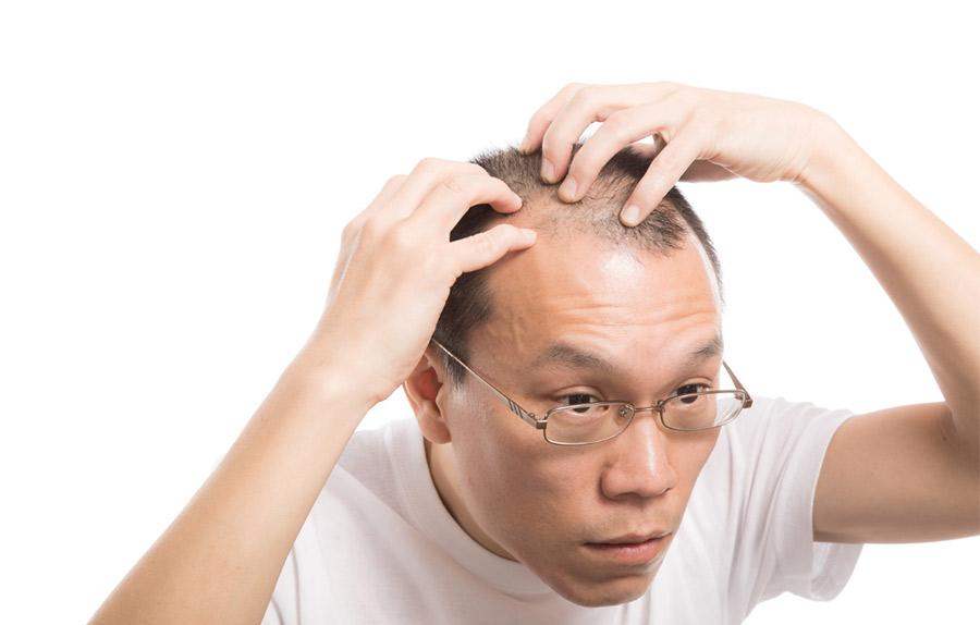 薄毛対策になる食い物とか薬用シャンプーとか頭皮マッサージってハゲに効くの?