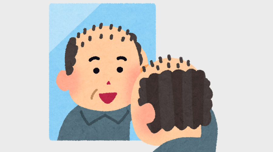【ハゲ速報】AGA治療を始めて1.5ヶ月、髪の毛が沢山生えてきて歓喜!