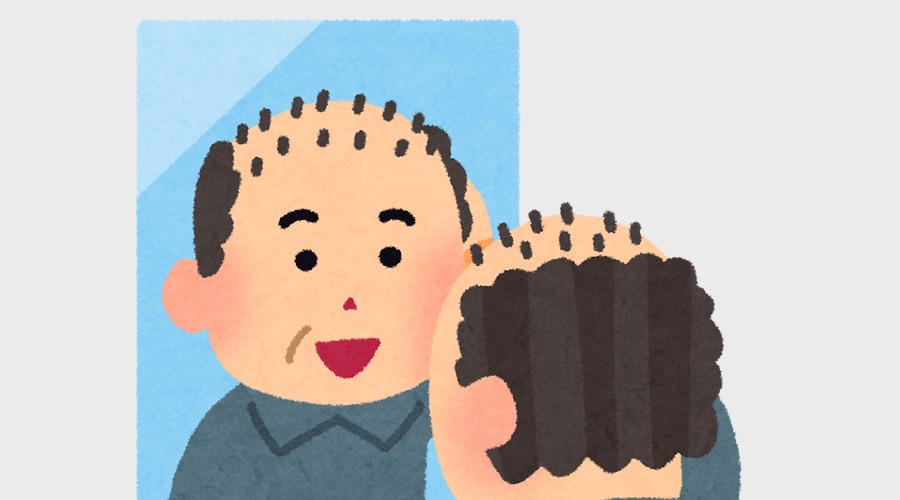 ハゲ治療薬飲んだら毛がメチャクチャ生えてきた!!!