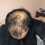 【ハゲ速報】ワイの頭皮、ツーアウト(画像あり)