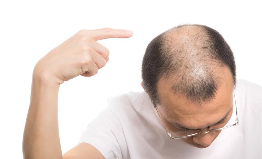 【ハゲ速報】ワイ、頭皮から「ヤバイ髪の毛」が抜ける(画像あり)【閲覧注意】