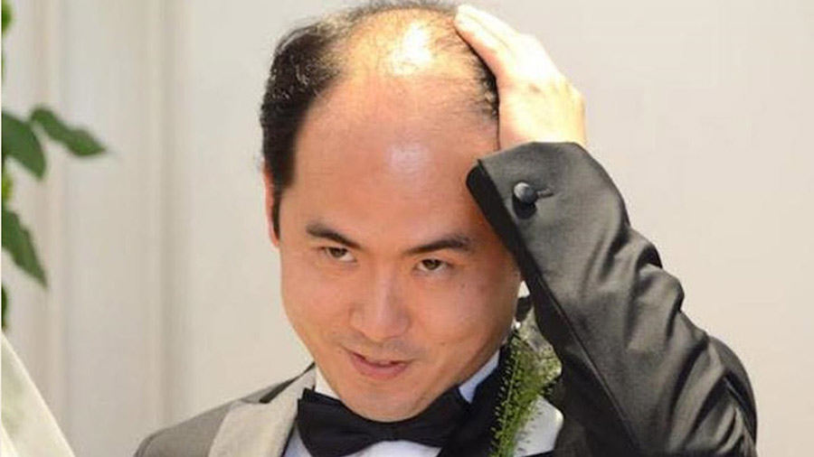 【ハゲ速報】トレンディエンジェル斎藤さん、かなりヤバそう