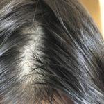 【ハゲ速報】23歳ワイちゃん、髪が無事逝く(画像あり)