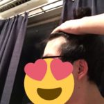 【ハゲ速報】ワイ二十歳、生え際、終わる(画像あり)