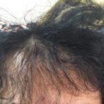 【ハゲ悲報】前髪が日に日に薄くなってきてるんやが?