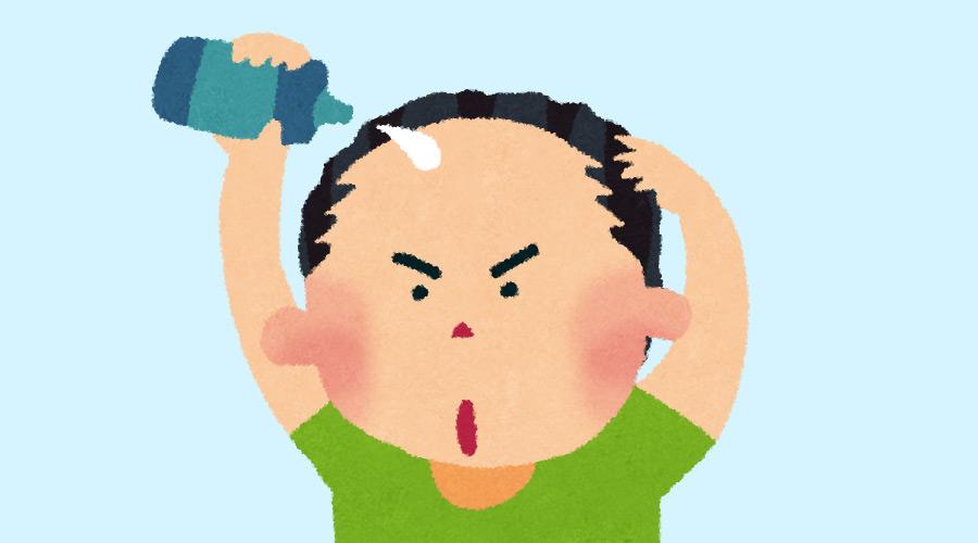 【ハゲ悲報】若ハゲさん、ハゲ薬「ミノキシジル」を服用した結果(画像あり)