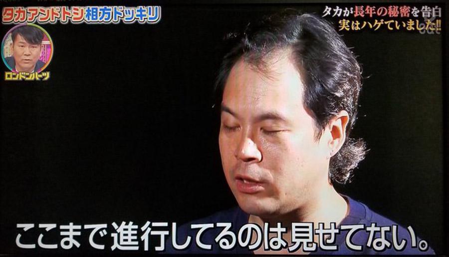 【画像】金髪時代のタカアンドトシのタカがこちら!