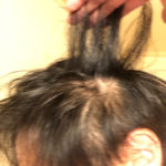 【ハゲ速報】ワイ若ハゲ(26)、もう開き直って丸刈りにする事を決意(画像あり)