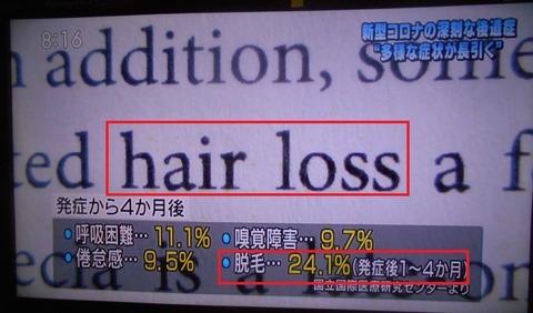 【ハゲ悲報】新型コロナ後遺症で2割以上の人に「脱毛症」が発生!!!