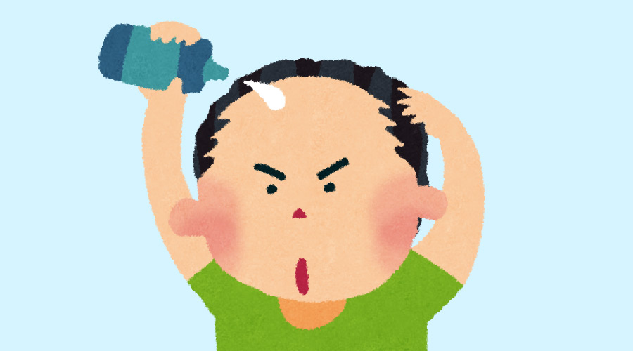 【朗報】若ハゲさんが「ミノキシジル」を服用した結果とんでもない発毛効果が!(画像あり)