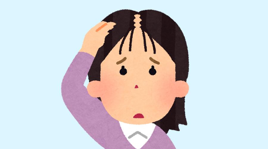 【ハゲ悲報】女子さん、スカスカ頭皮にぴえん(画像あり)