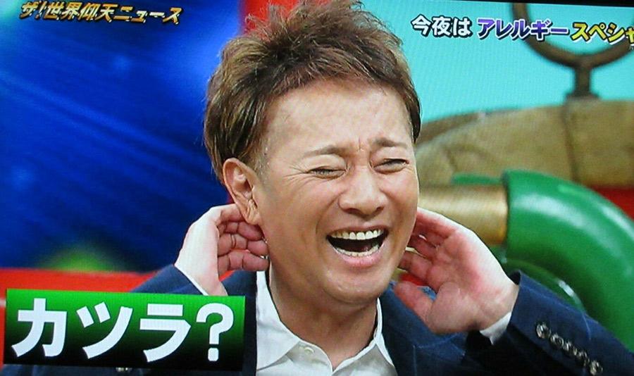 【ハゲ悲報】中居正広さん・・・髪が・・・