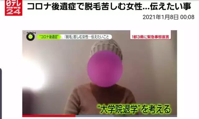 【ハゲ速報】コロナの後遺症、女子もハゲる事が確定!!!(画像あり)