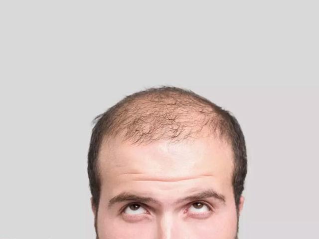 もし自分の髪の毛が100gあたり1万円で売れるなら売る?