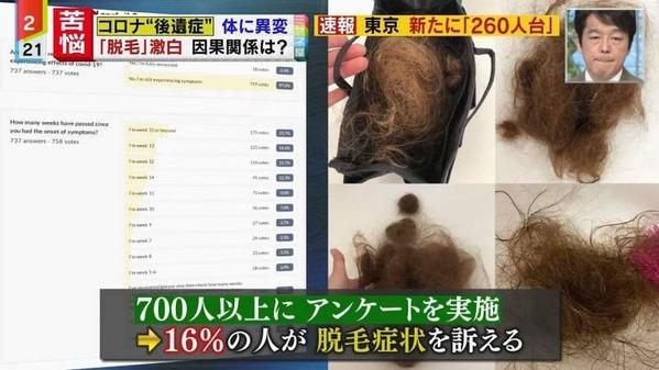 【ハゲ速報】若い世代の50%に髪の毛が抜けるコロナ後遺症!2ヶ月後に排水溝が詰まるほど脱毛するらしい