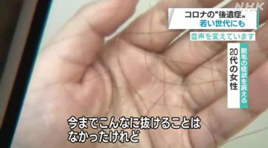 【ハゲ速報】コロナ後遺症で抜け毛に悩む女性たち