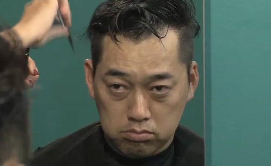 【ハゲ速報】バナナマン設楽さん、ハゲてしまう
