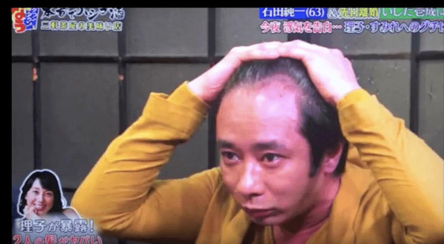 【ハゲ速報】いしだ壱成さん、遂にハゲを受け入れる(画像あり)