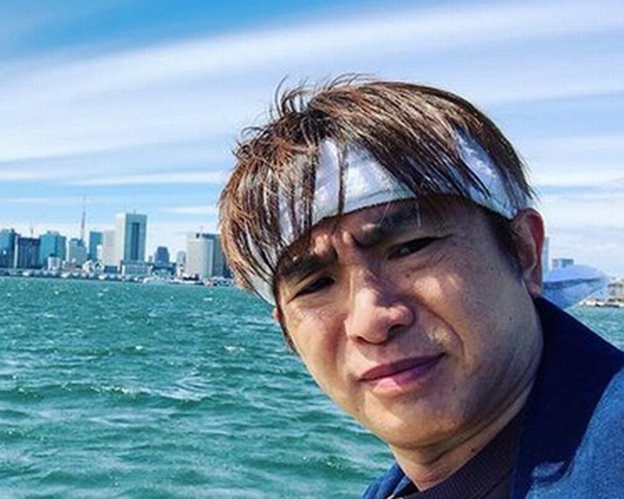 【ハゲ速報】よゐこ濱口さんの頭皮、リアルガチでヤバい(画像あり)