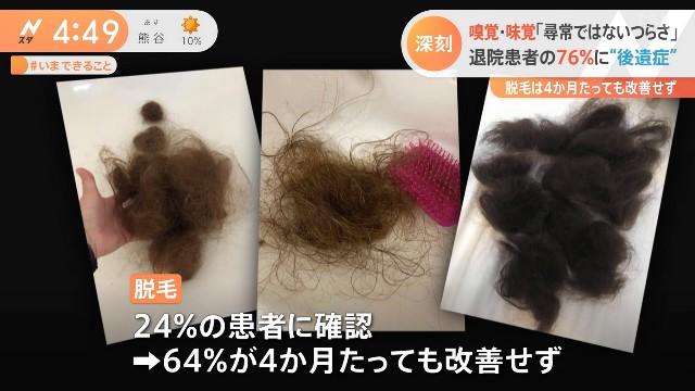 【ハゲ悲報】コロナハゲの脱毛は6割以上が改善なし!繰り返す6割以上が改善なし!!!