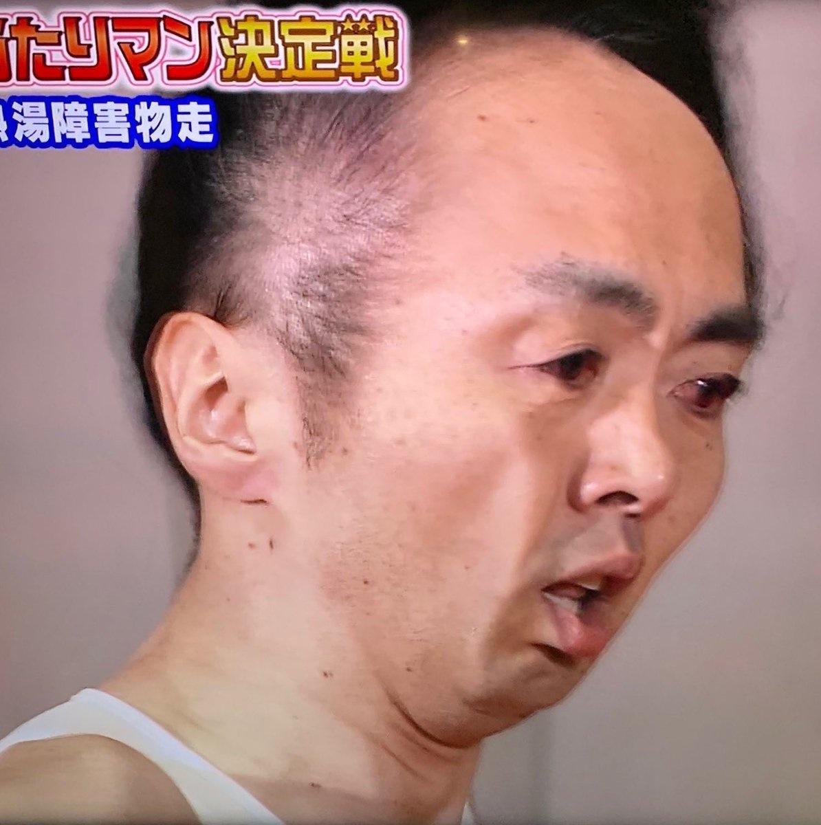 【ハゲ悲報】「抱かれたくない芸能人ランキング」トップスリー全部ハゲだった!!!