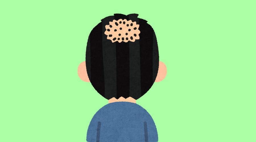 【ハゲ速報】ワイ25歳、後頭部からハゲ出す(画像あり)