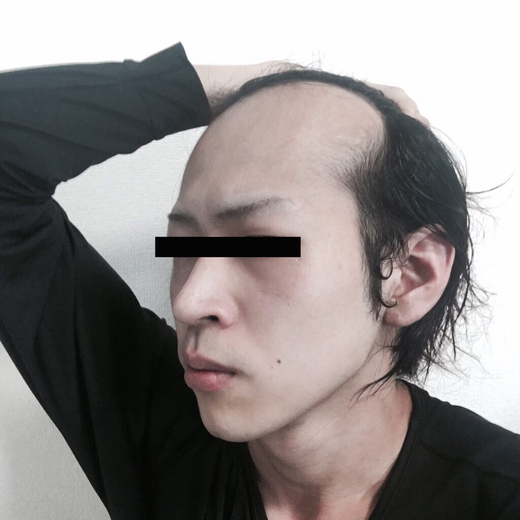 【ハゲ速報】ワイの前髪、セルフシースルーになるwwww