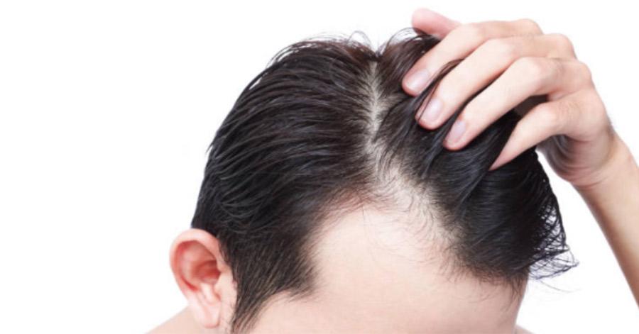 【ハゲ速報】若ハゲ治療して5カ月たったワイの頭皮がこちら(画像あり)