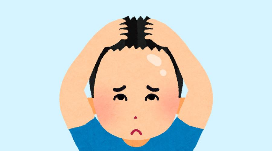 【ハゲ速報】ワイ(18)、すでに前髪がハゲはじめる(画像あり)