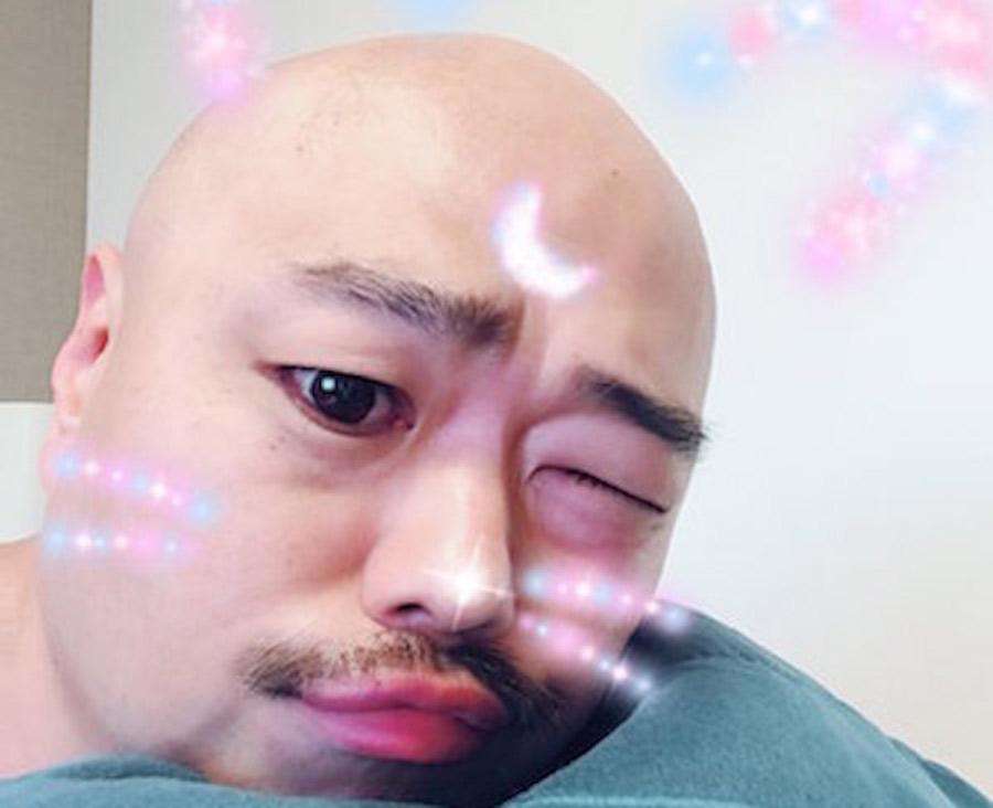 【ハゲ悲報】クロちゃん、コロナ感染で大変な事になる(画像あり)